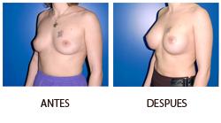 El ejercicio aumentará los pechos